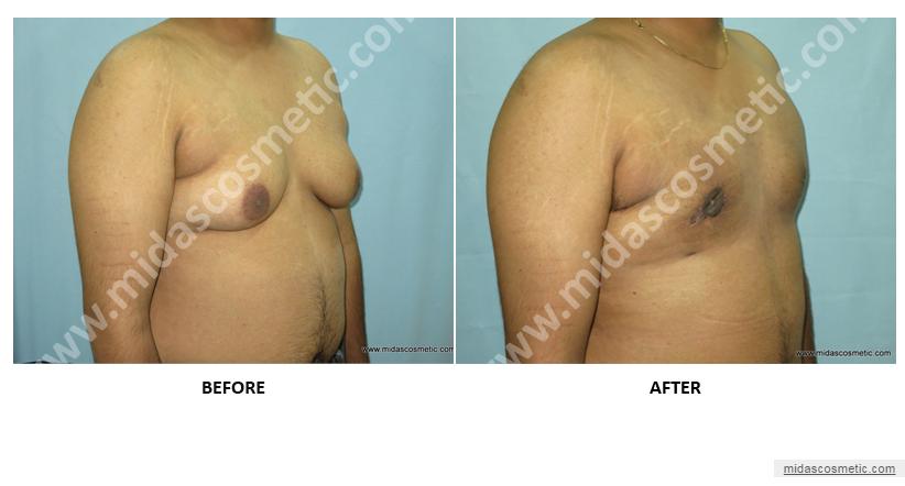 Gynecomastia Surgery in Bangalore