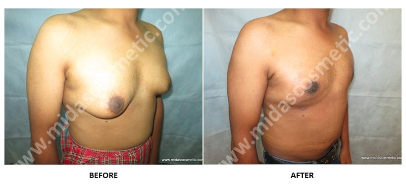 Man Boobs Treatment in Bangalore