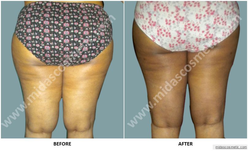 Liposuction in Bangalore