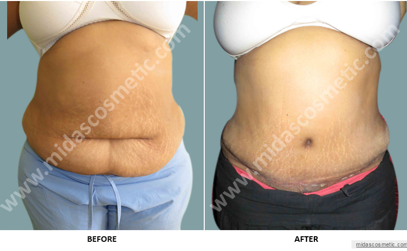Wearing a sari with confidence- Tummy Tuck and Abdominoplasty