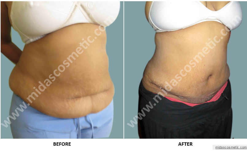 Tummy Tuck and Abdominoplasty