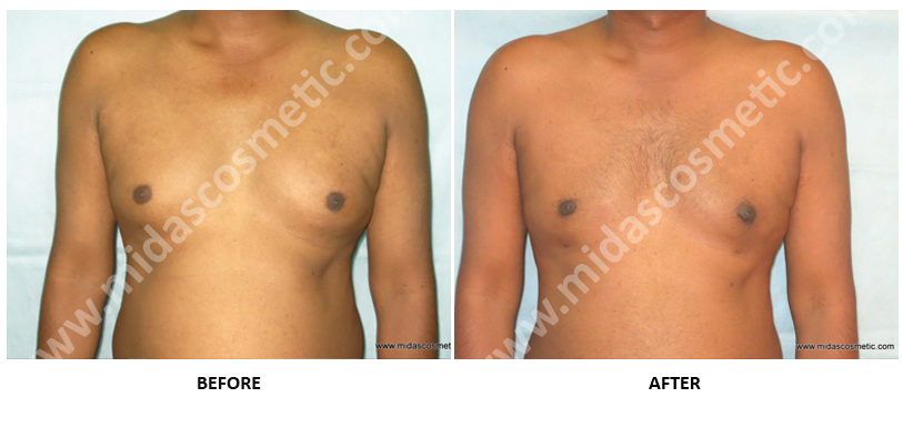Gynecomastia in Bangalor