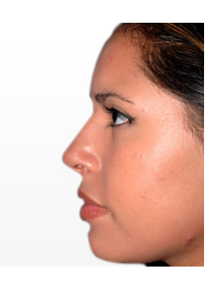 Rhinoplasty in Bangalore, nose job in Bangalore