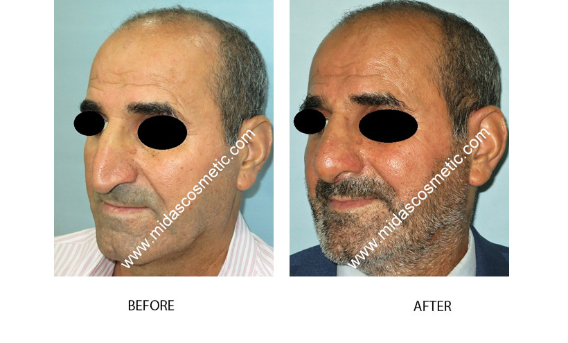 Nose Surgery In Bangalore