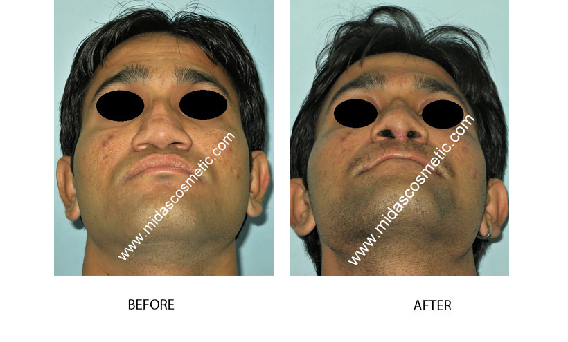 Rhinoplasty surgery cost in Bangalore
